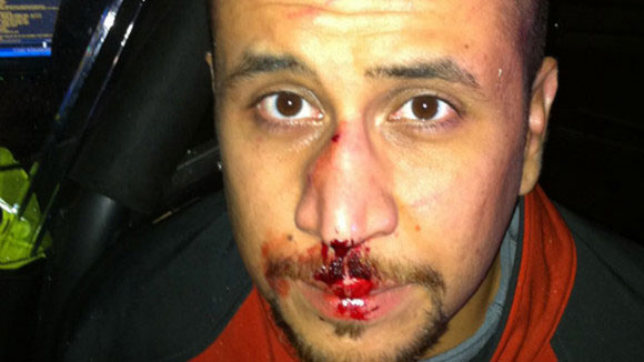 George Zimmerman with a broken nose